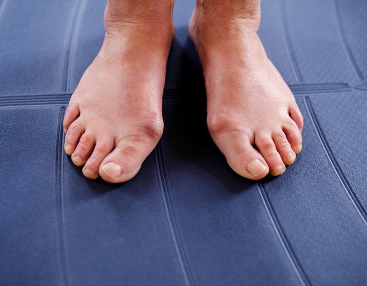 Foot Deformities