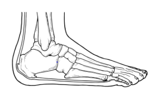 Illustration showing the bones and the band of the foot. The ban represents the plantar fascial band and Achilles tendon.