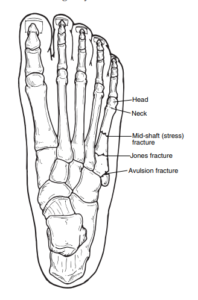 Illustration of a top-down look at the bones in the foot, showing the different areas where the 5th metatarsal can break.