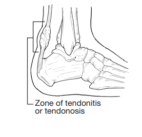 Illustration showing the bones and bands on the heel of a foot, highlighting the Zone of tendonitis.